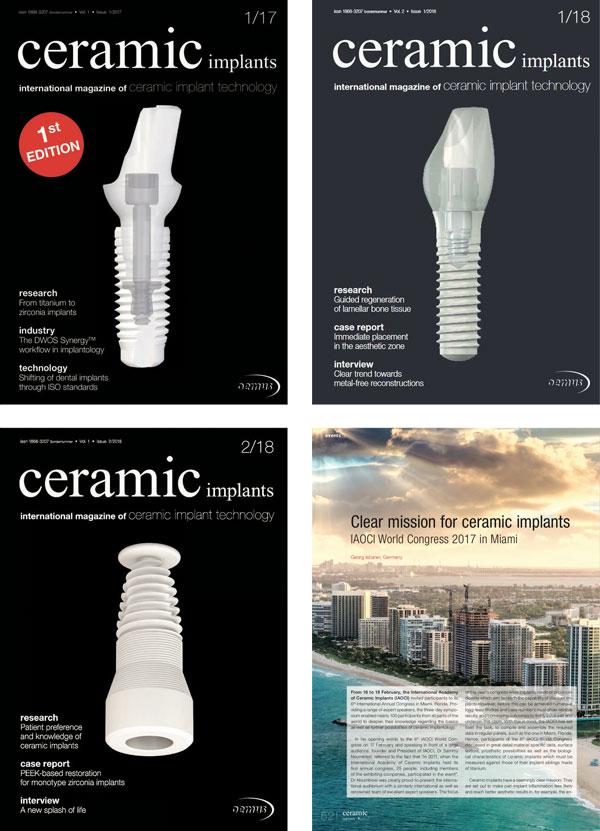 ceramic implants international Annual Subscription