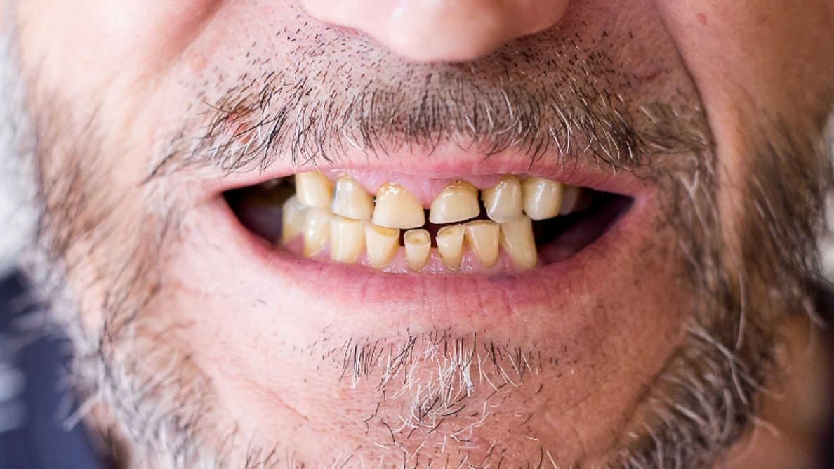 Pandemija uzrokuje porast incidencije oralnozdravstvenih stanja povezanih sa stresom