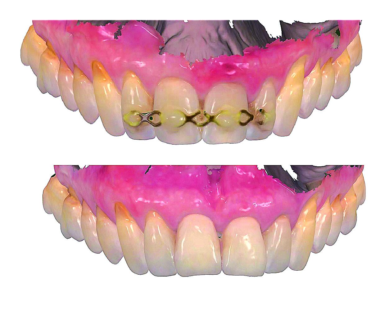 Estetska restauracija nakon traume prednjih zubi